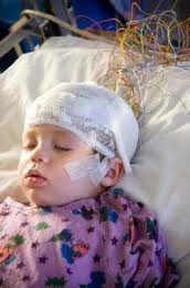 sleep study child being evaluated for child sleep problems